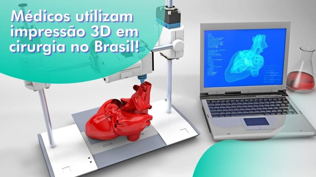 Cirurgia com auxílio de impressão 3D: sabia que já é realidade no Brasil?